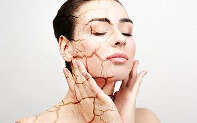 Διψάει το δέρμα σου μετά την έκθεση στον ήλιο?